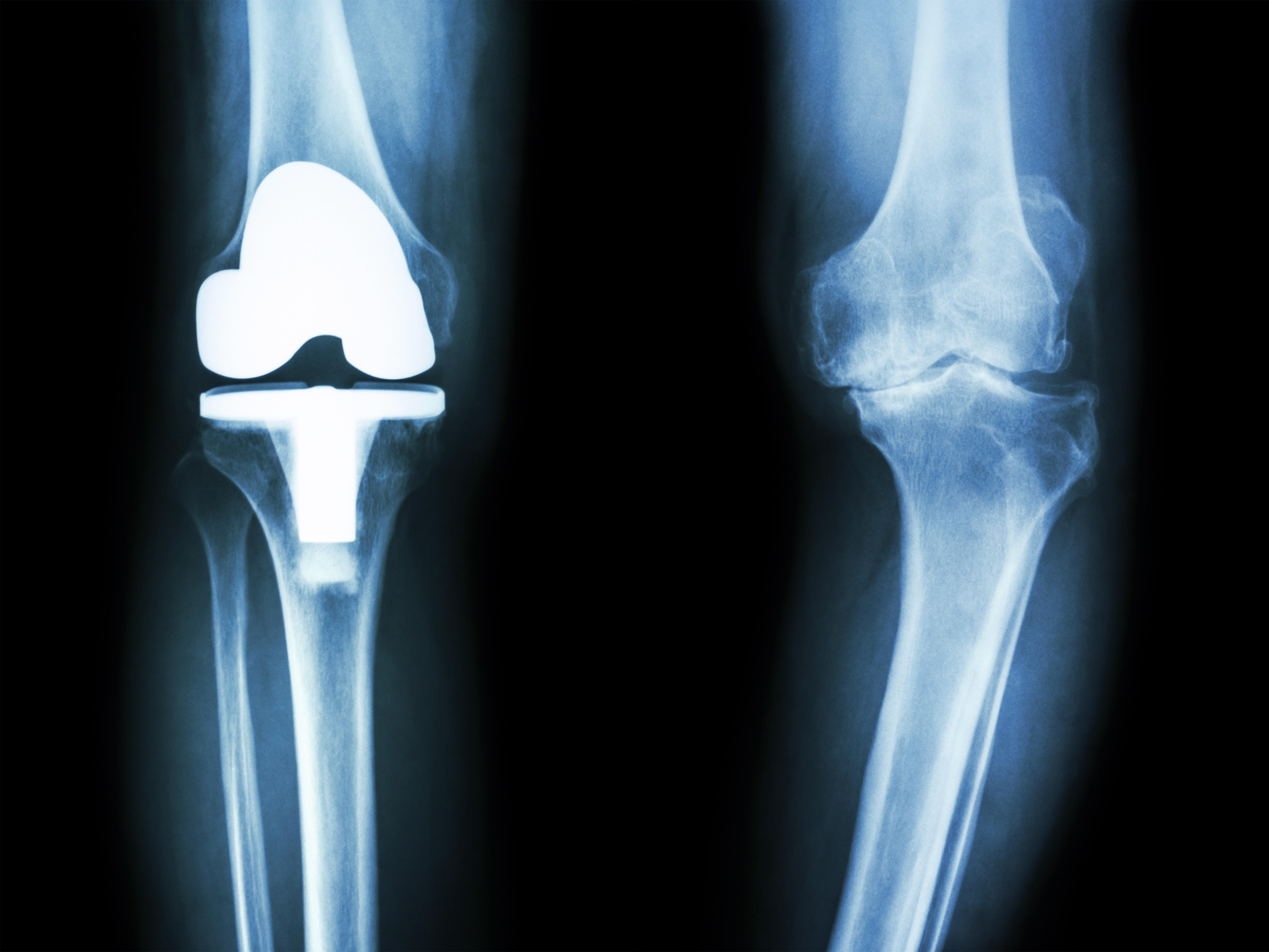 変形性膝関節症になる原因について