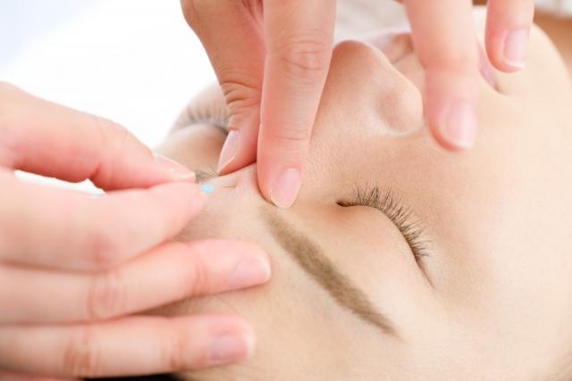 当院の安心できる美容鍼について