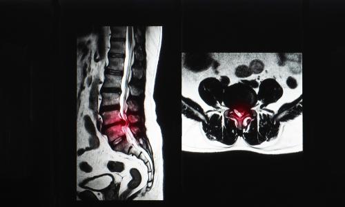 脊柱管狭窄症を引き起こす原因